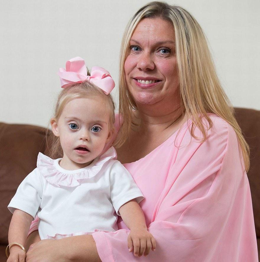 才2歲大的超可愛唐氏症女模,越挫越勇小小年紀已簽下了人生中的第2張經紀合約!