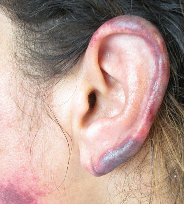 若覺得吸食一點古柯鹼沒什麼大不了的話,那這些「皮膚燒熔發黑」的案例會讓你知道自己錯得太離譜了!
