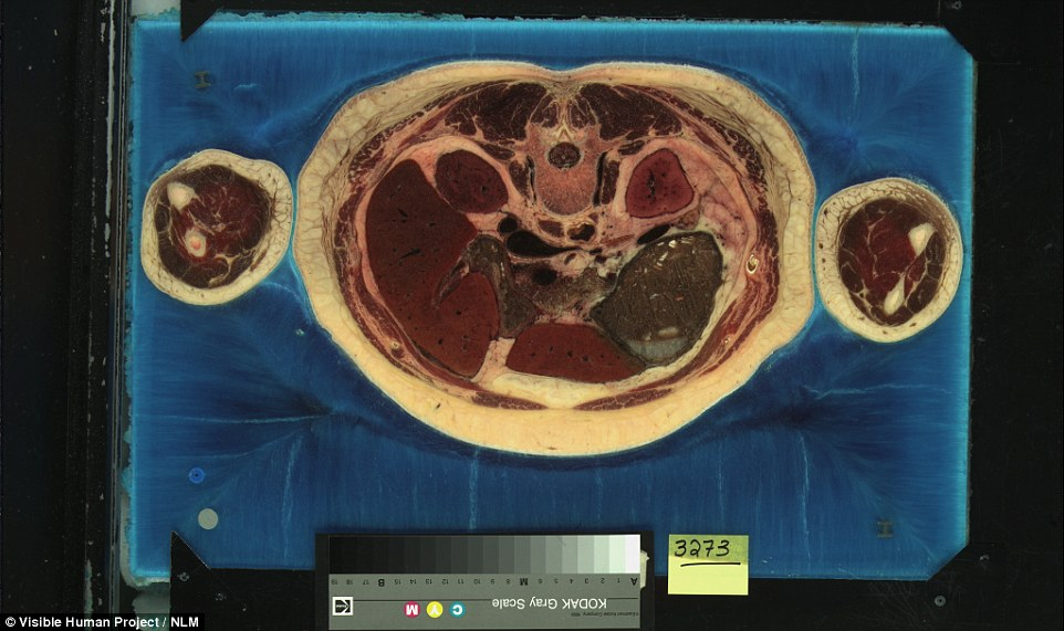 在將這名女性的屍體切成5000片之後,讓整個人類醫學都大躍進了。