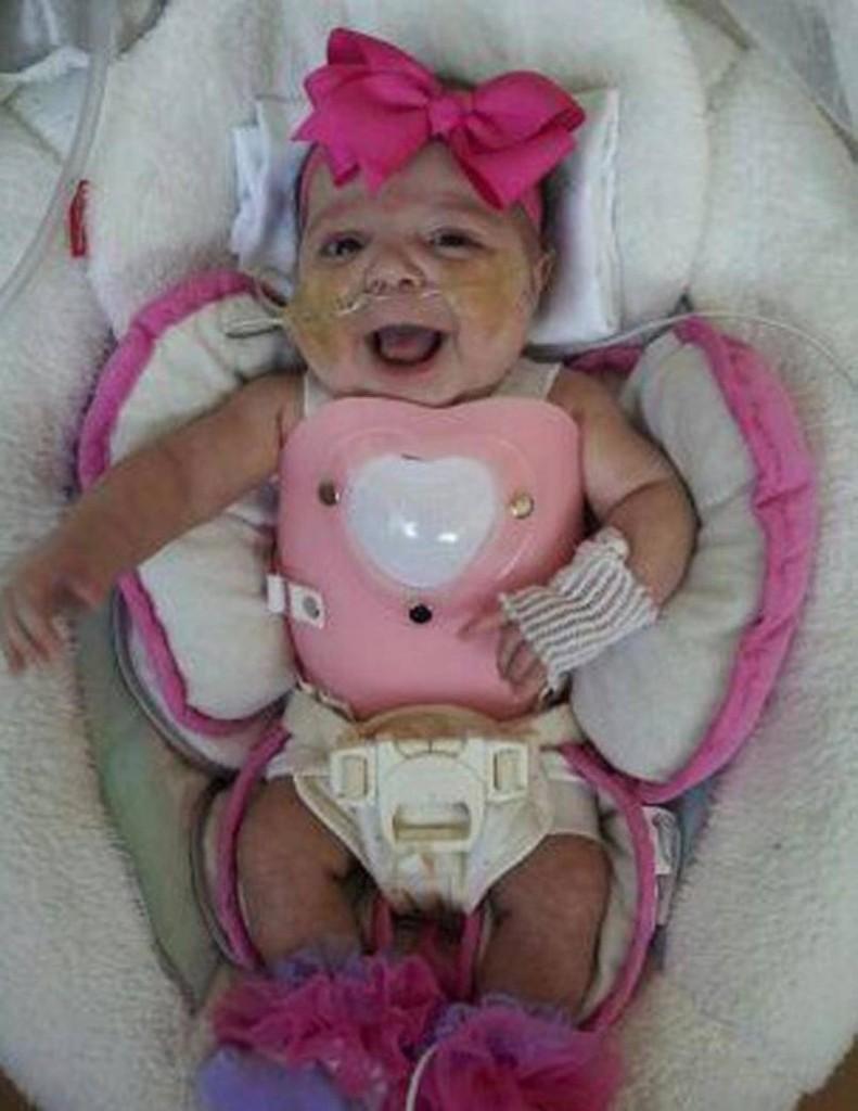 醫生宣判這名「心臟長在身體外面」的女嬰活不過三天,但他們幫她製作的「盔甲」讓她生命有了轉機!