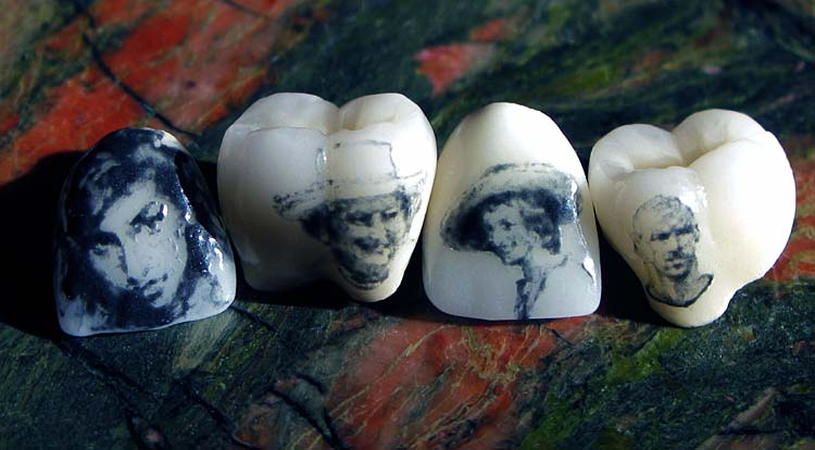 這些人覺得在身上刺青實在太無趣了,於是就把刺青「刺在牙齒上」!