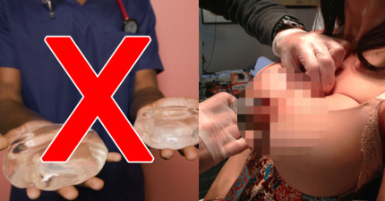 這個美國最新流行的「吸血鬼隆乳」不僅在台灣違法,它詭異的手術方式還會讓妳覺得有點毛毛der!