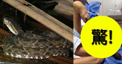 這名13歲女生被蛇咬了之後沒有即時處理,結果最後都只剩下骨頭了...