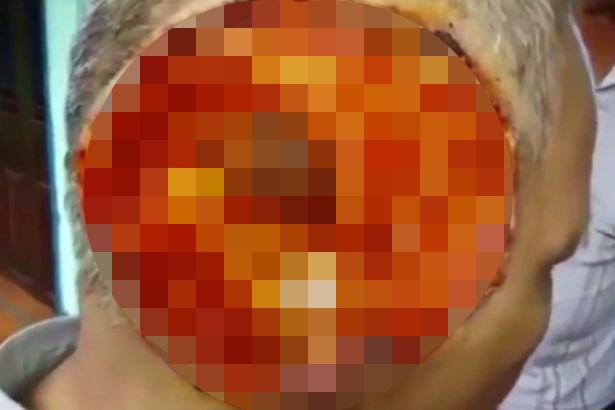 這位「半張臉被神秘食肉病毒吞食快看到腦的男子」的極限病狀會讓最勇敢的人都看不下去!