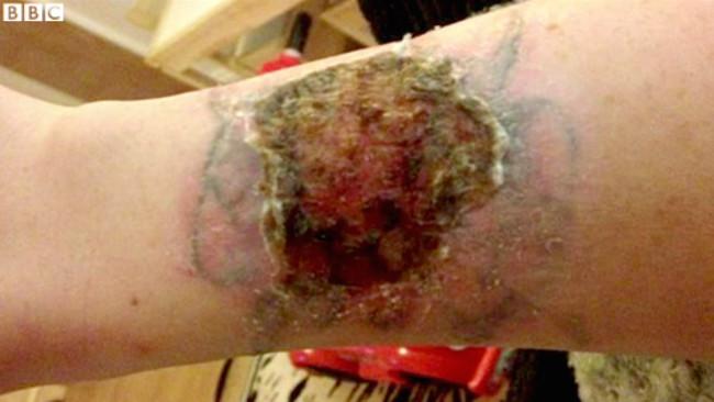 這個女生為了省下移除刺青手術的幾百塊美金,買了便宜網購移除組,結果手臂上灼出了個大洞!