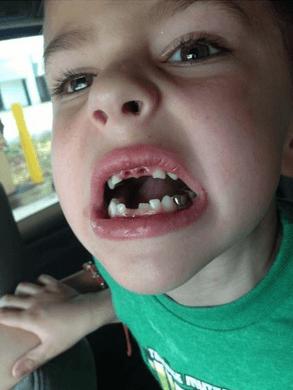 這些小孩滿身是血地從這間牙醫診所走出來後,家長們才發現到需要馬上報警!