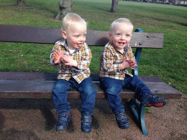 這對兄弟跟一般同卵雙胞胎的差別連醫生都很吃驚,唯有拿出一面「鏡子」才看得出來!