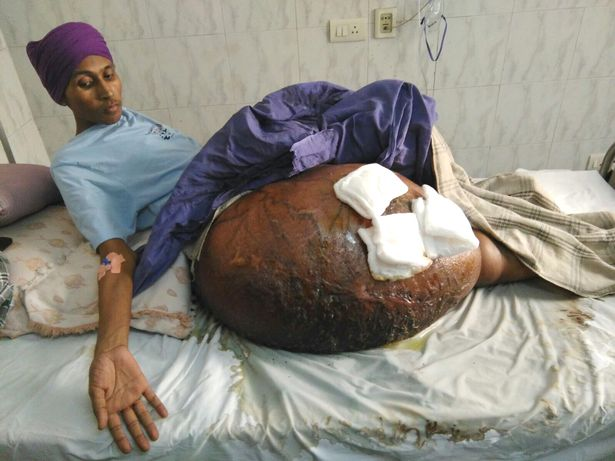 Gurmeet Singh pictured before his tumour surgery at Max hospital in New Delhi, India