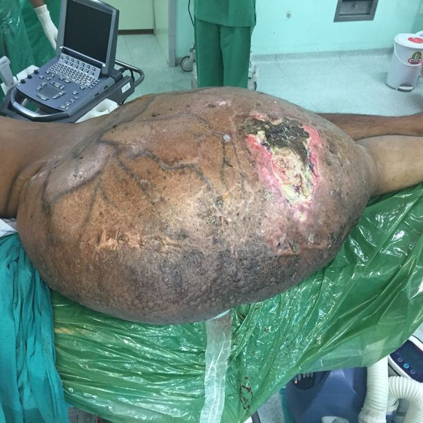 Gurmeet Singh's tumour is seen before his surgery at Max hospital in New Delhi, India