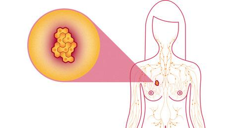 科學家最新驚人發現:原來最有效的癌症靈丹原來大多數人的家裡都有!
