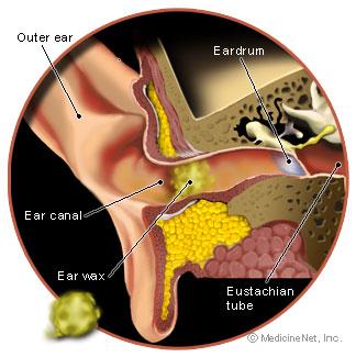 你錯誤地用棉花棒挖耳屎正在嚴重傷害你的耳朵!這才是醫生建議最有效的清潔方式!