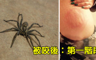 這個女生被這種蜘蛛咬到第一個階段看起來還好,但看到第二個階段時我今晚就已經吃不下飯了...