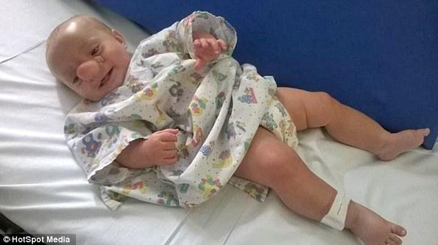 這名男嬰被稱為「真人版小木偶」因為大腦長在鼻子裡!