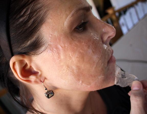pore strips