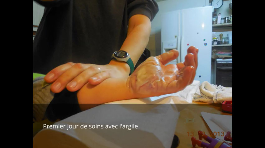 4歲小男孩被嚴重燙傷但醫院無法開藥,父母竟用「祖傳神奇黏土秘方」將他完全治好!