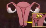 我本來不懂為何「這種女性結紮法不用開刀」但很少人選擇,看完這個3D示意影片我就嚇到馬上瞭解了。