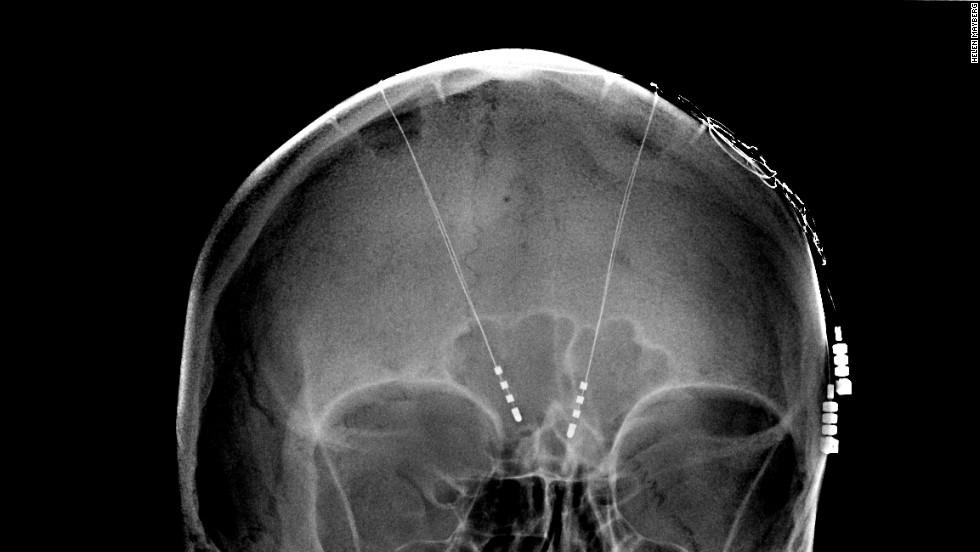 130508171349-deep-brain-stimulation-memory-implants-horizontal-large-gallery