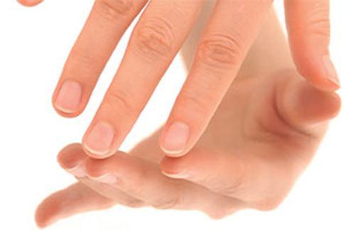 如果看到指甲上出現一道道直線的話,趕快放下手機到醫院掛號檢查身體吧!