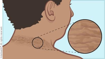 如果你的脖子有「怎麼洗都洗不乾淨的黑色髒污」,聽完醫生的嚴重警告你會手刀衝去醫院檢查!