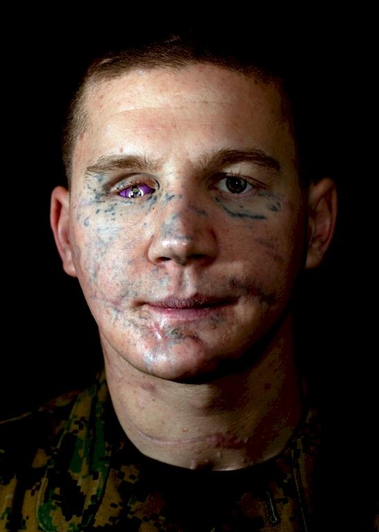 他跳到手榴彈上保護隊友「瞬間被撕碎」,他現在模樣會讓你相信好心有好報!