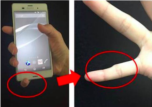 There are thousands of people who have noticed that their pinkies have started looking like this, and it's because they hold their phones for way too many hours a day.