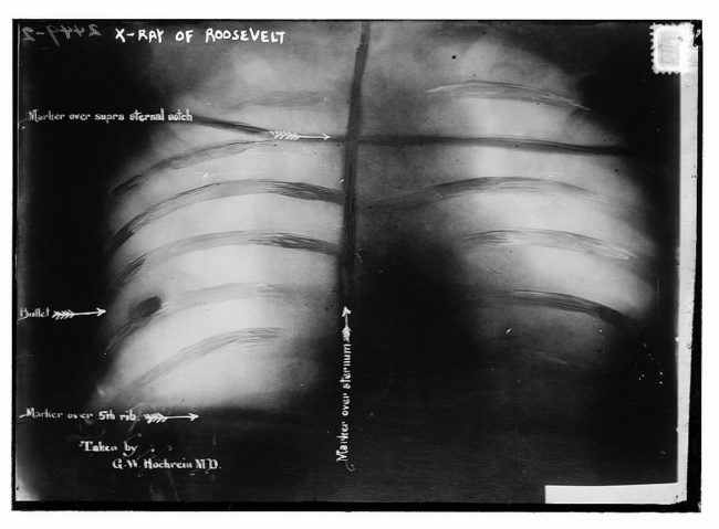 The bullet did not penetrate his pleura, meaning that it would be more dangerous to remove it than it would be to leave it in place. Teddy kept the bullet in there for the rest of his life.