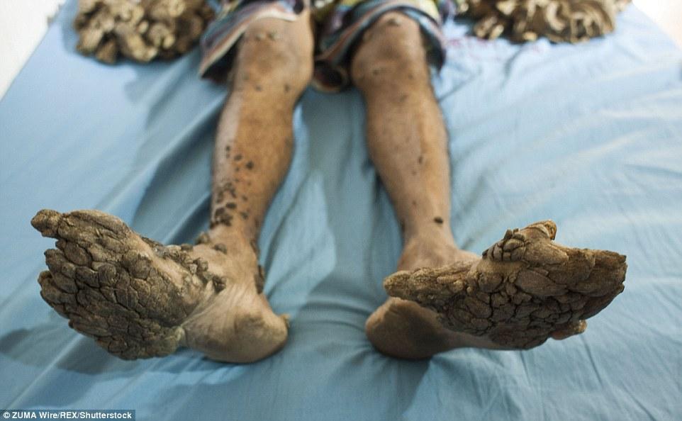 這名男子在7年前突然罹患怪病,讓他慢慢變成一棵樹!