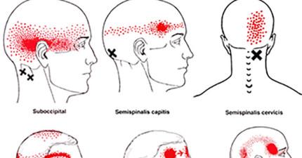 5種「經常被輕忽但不立即就醫其實能致命」的頭痛癥兆。睡覺醒來頭痛原來這麼嚴重!