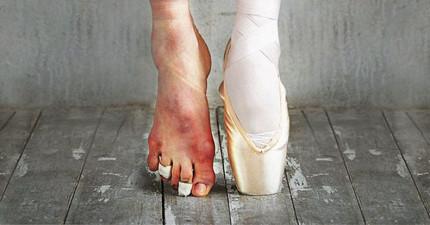 12張你絕對不該看見的芭蕾舞者私密內幕照片!#6讓我覺得他們真的太偉大了!