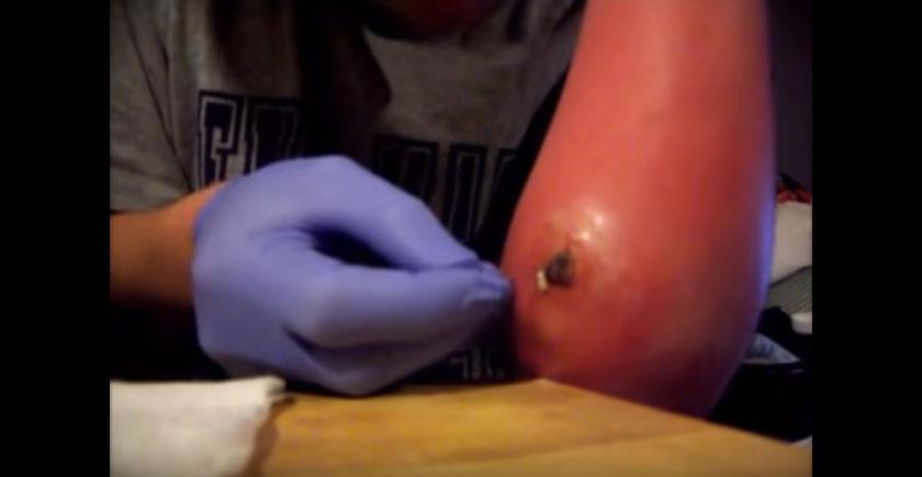 這個男生被蜘蛛咬了3 4後手就腫到變成一個大葫蘆!當用針戳破然後擠壓時...OMG!(比痘痘新聞猛)