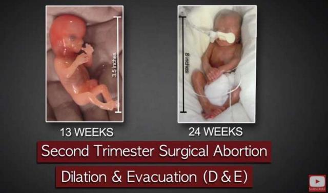 這位醫生執行1200次墮胎手術後就受不了辭職,看到他把刀伸到子宮裡時超恐怖墮胎畫面我就懂了...
