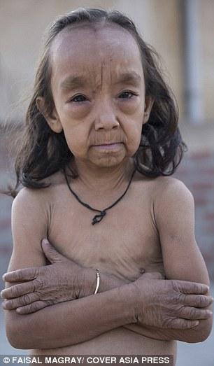 印度這對姊弟罹患一種罕見疾病使他們「一出生就比爸媽還老」。看完他們的可憐遭遇我鼻酸到不行…