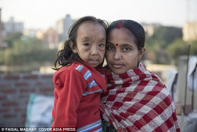 印度這對姊弟罹患一種罕見疾病使他們「一出生就比爸媽還老」。看完他們的可憐遭遇我鼻酸到不行...