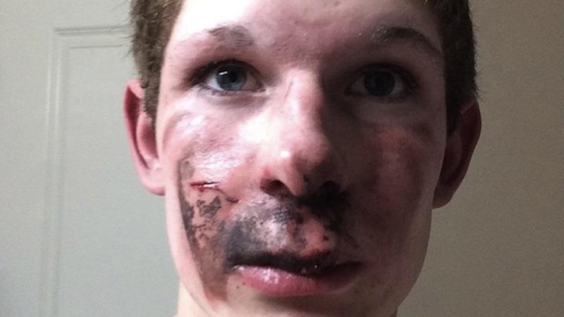 16歲少年正在抽電子菸時突然爆炸,爸爸一轉頭看到的超驚悚正面傷勢讓很多網友再也不敢用電子菸了...