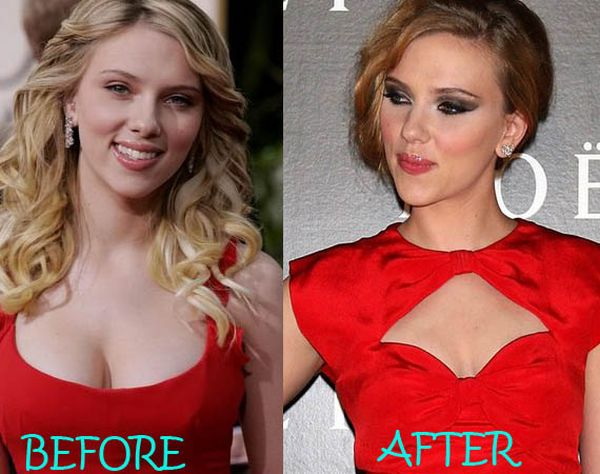 Scarlett-Johansson-breast-reduction-before-after