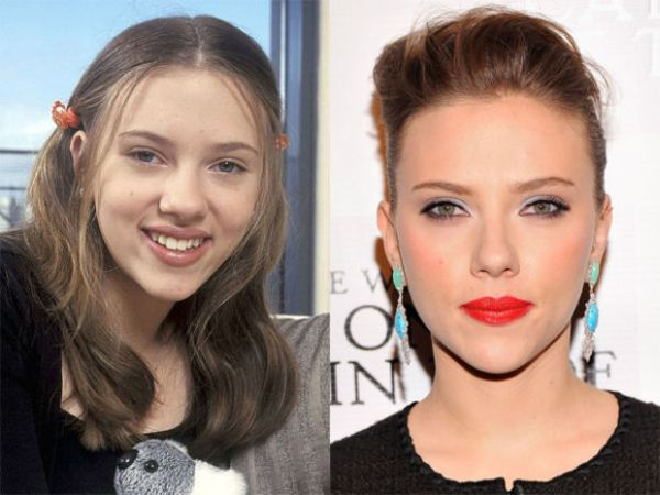 Scarlett-Johansson-nose-job-before-and-after