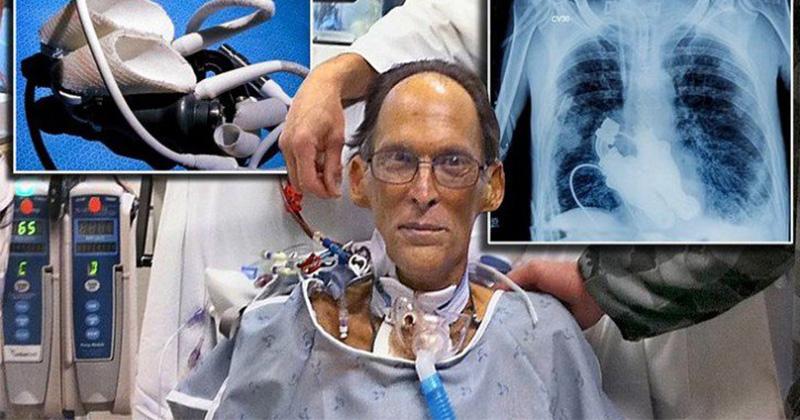 我以為人類沒有心臟就活不了,但是這個「沒心臟男人活了五周的神蹟」完全顛覆我對醫學的想像!