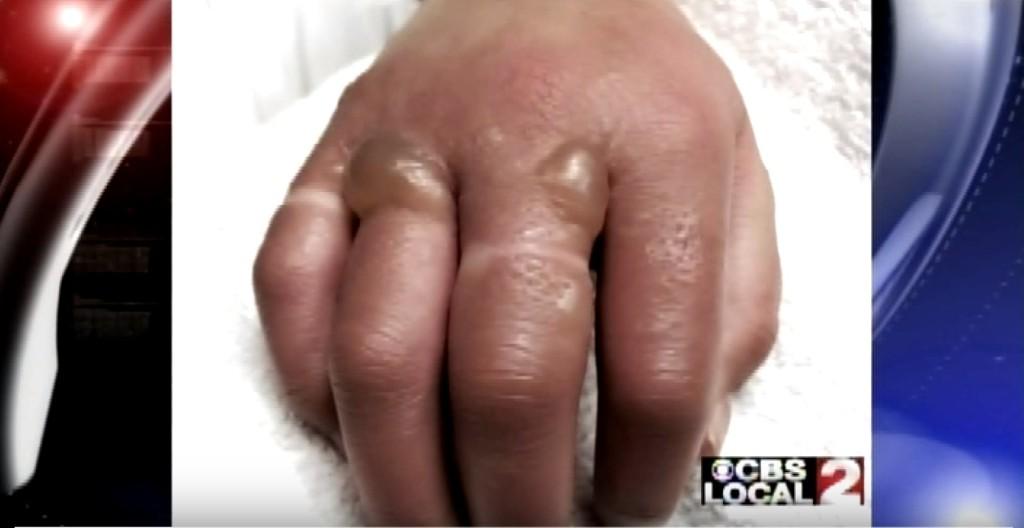 如果你每次擠完檸檬後都沒有把手洗得非常乾淨,那你也可能會變成這樣!