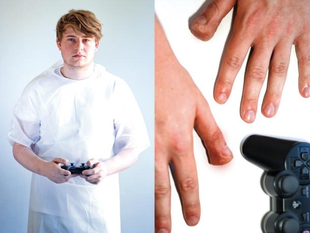 8個如果你再繼續瘋狂打電動可能會發生的「遊戲關節炎」,沒想到玩太多Wii會...