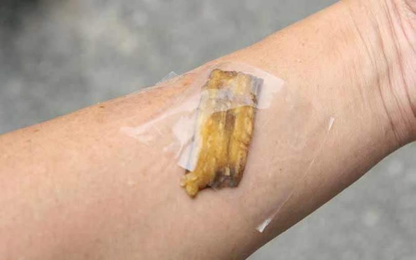 banana-peel-uses-wart-remover