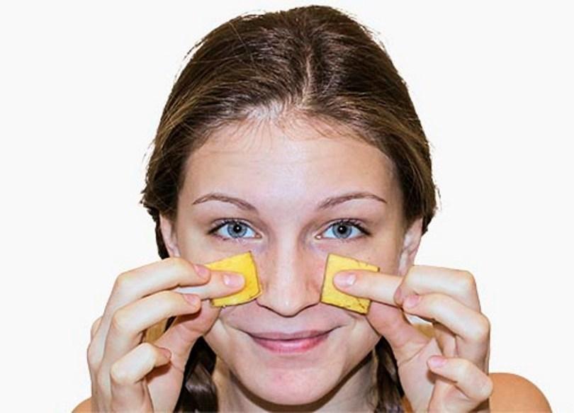 banana-peel-uses-acne-treatment
