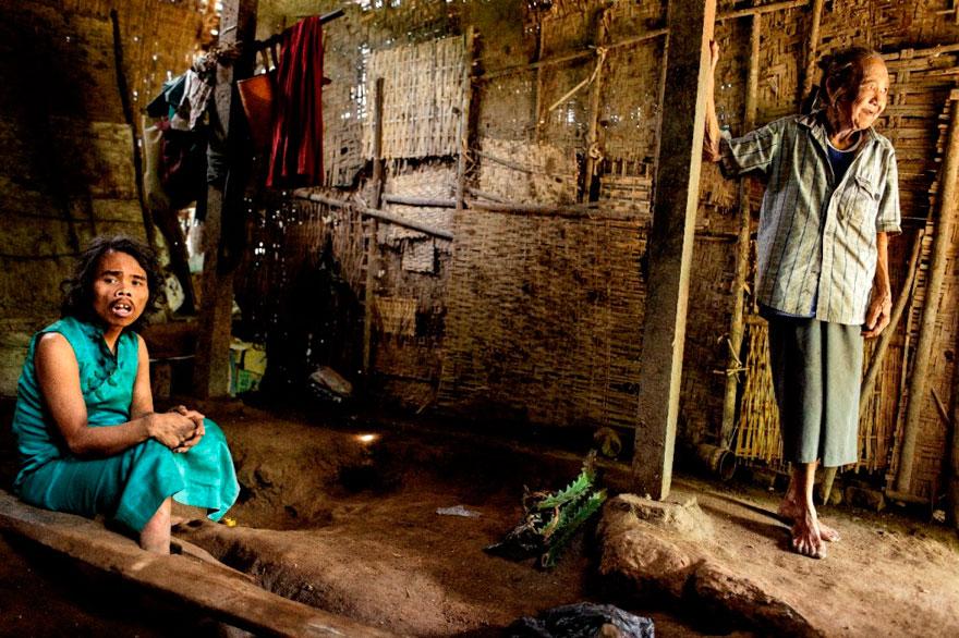 攝影師花費兩年拍下印尼精神病院的黑暗秘密,接受他們的「治療」後就算沒病也會變有病。