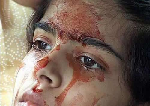 這名可憐少女眼睛耳朵每天都會莫名流血,但醫生專家檢查後發現的結果讓人真的無法接受!