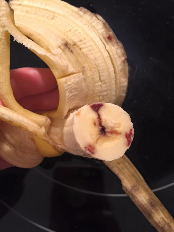網路盛傳「大量香蕉被注射愛滋病毒血液食用會中標」,但真相是...