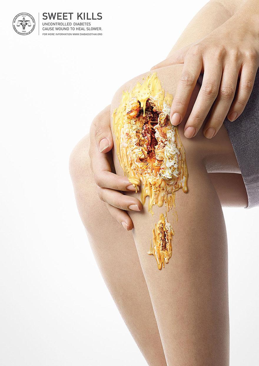 sweet-kills-sugar-harm-advertisement-uncontrolled-diabetes-wounds-5
