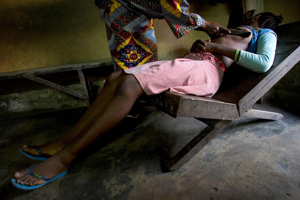 非洲女孩滿十歲就必須要用炙熱的石頭把乳房燒壞,而且最嚴重的是-加害者都是她們的母親!