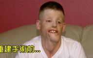 美國軍人為了救朋友「被1萬伏特高壓電擊中導致全臉毀容」,他臉部重建後與兒子的幸福模樣讓大家都開心落淚了!