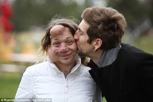 她因為怪病毀容讓初戀男友不敢公開戀情,但現在看到她和英俊老公的幸福合照證明了「真愛勝過一切」!