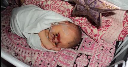 他一出生就被狠心爸媽揚言「要把沒有眼皮鼻子的他毒死」,但沒想到這卻給了他最棒的生活!