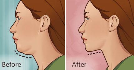 5招在7天內就可以改善你胖胖雙下巴的「雙下巴終結方法」。